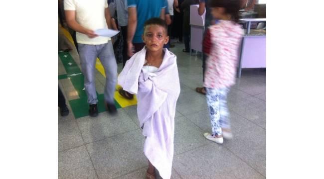 Üzerine kaynar su dökülen çocuk hastaneye yürüyerek girdi