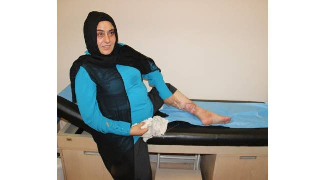 Bacaklarını kaybetme korkusu yaşayan kadın, radyo frekans yöntemiyle sağlığına kavuştu