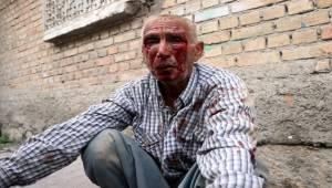 Urfalı Yaşlı adamı öldüresiye dövdüler