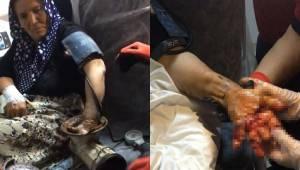 Urfalı Kadın Elini Kıyma Makinesine Kaptırdı