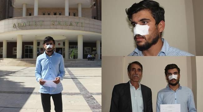 Urfa'da Kavga ettiği kuzeni tarafından burnu ısırılarak koparıldı-Videolu Haber