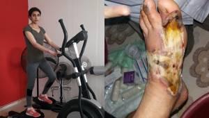 Ayakları Kesilecek Denildi Sporla Hayat Buldu