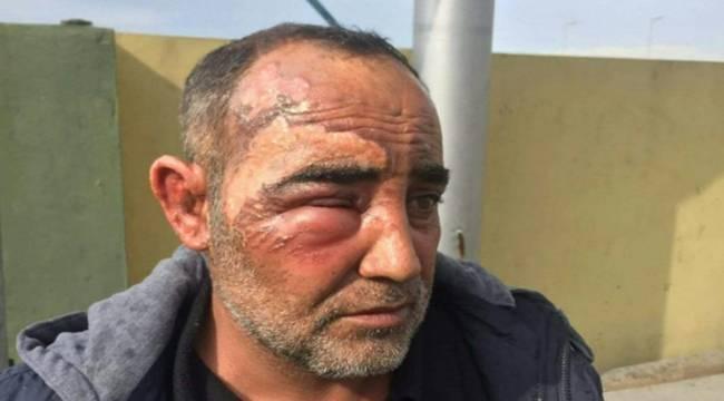 Urfalı Sürücü Irak'ta Yaralandı