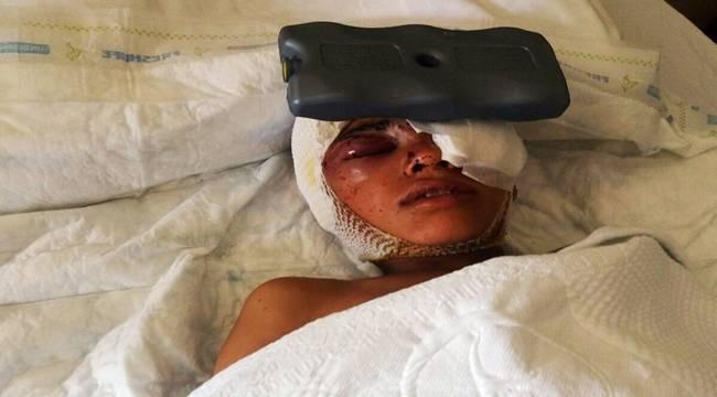 Patlamada Yaralanan Anne ve Çocuklarının Tedavileri Sürüyor