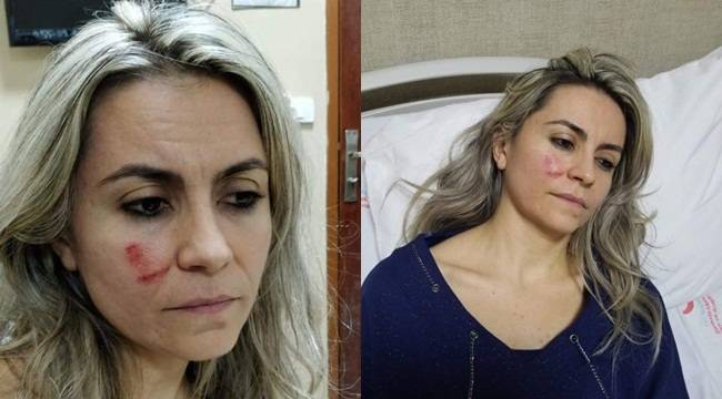 Doktor Saldırısının Nedeni Belli Oldu Saldırgan Tutuklandı
