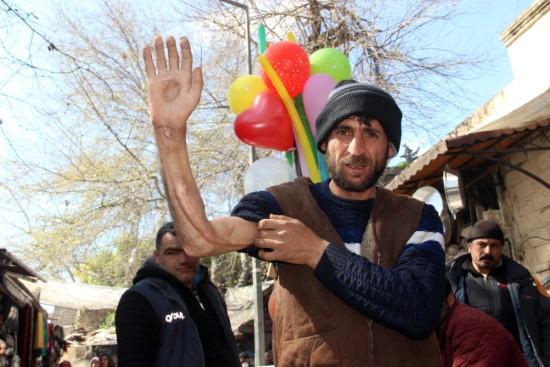 kolunu kaybeden vatandaş tedavi için yardım bekliyor