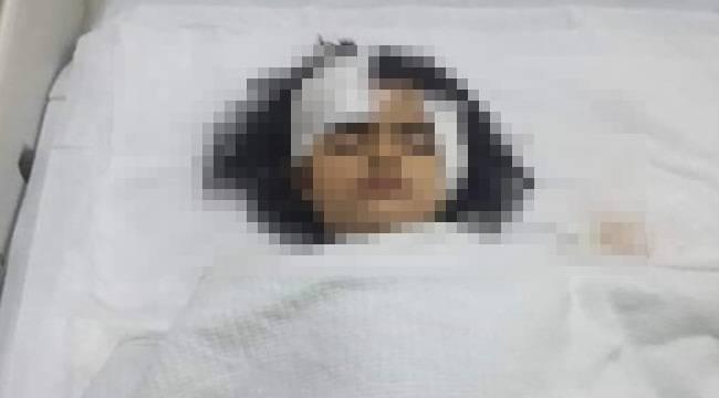 Ceylanpınar'da Motosiklet Kazası 1 Ağır Yaralı