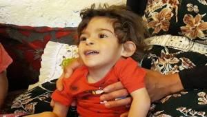 2 Yaşındaki Aycan'ın Yaşadığı Dram Yürek Burkuyor