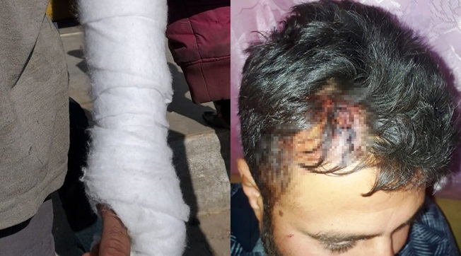 Eyyübiye'de Dedaş Ekibine Saldırı 6 İşçi Yaralandı